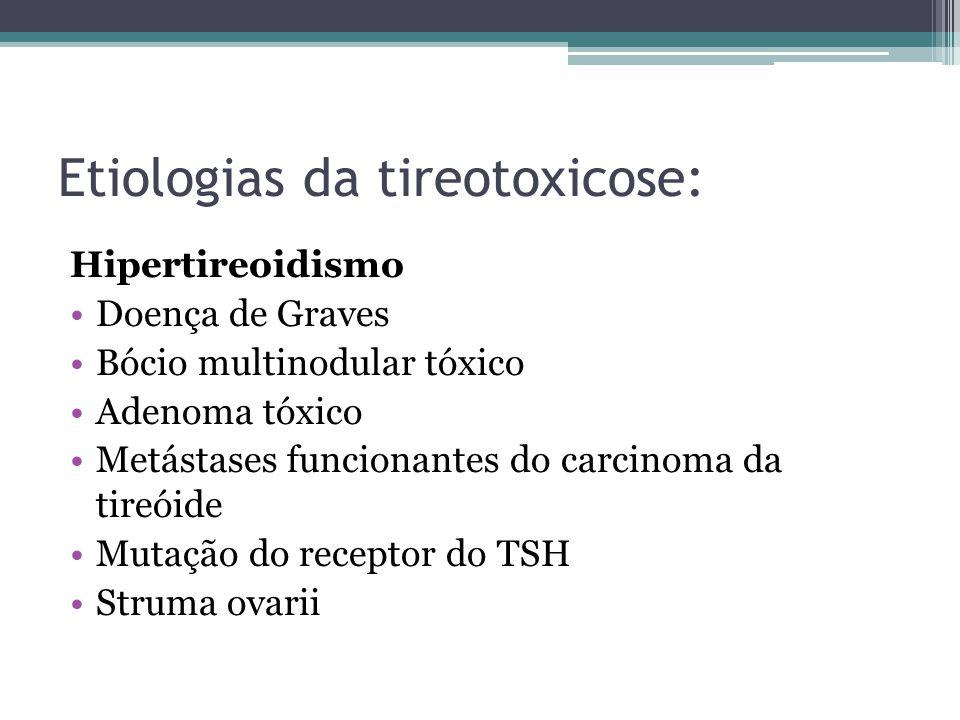 Etiologias da tireotoxicose: