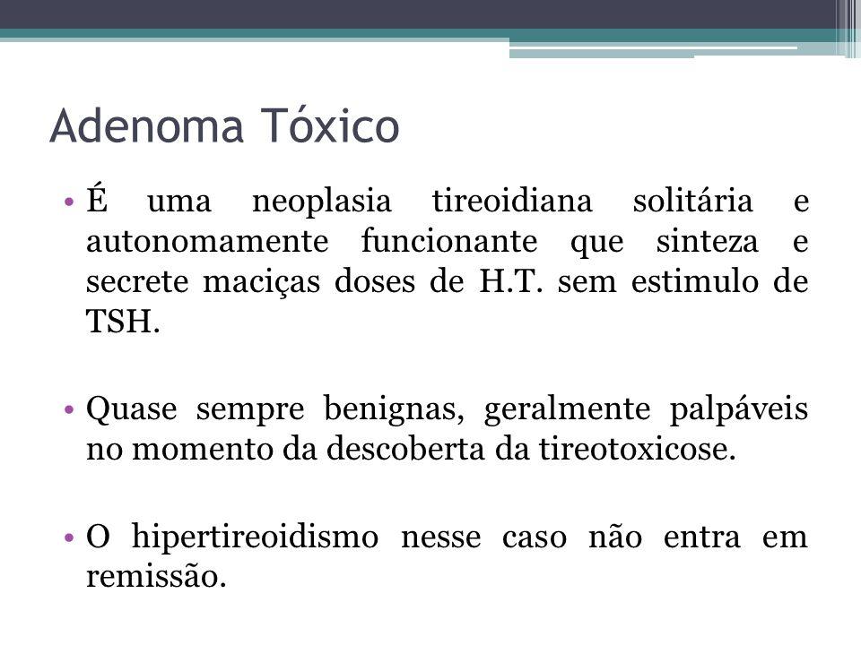 Adenoma Tóxico É uma neoplasia tireoidiana solitária e autonomamente funcionante que sinteza e secrete maciças doses de H.T. sem estimulo de TSH.
