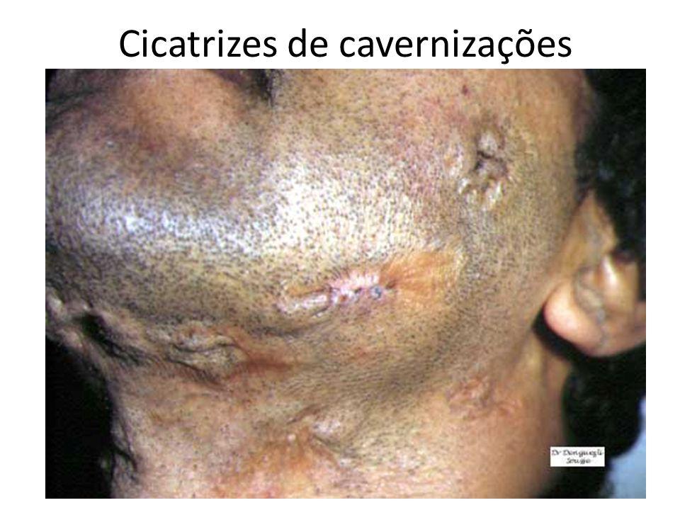 Cicatrizes de cavernizações