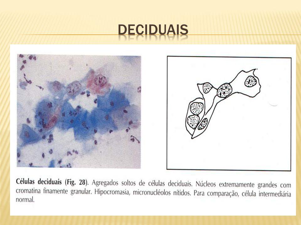 Deciduais