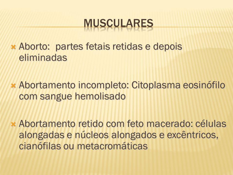 Musculares Aborto: partes fetais retidas e depois eliminadas