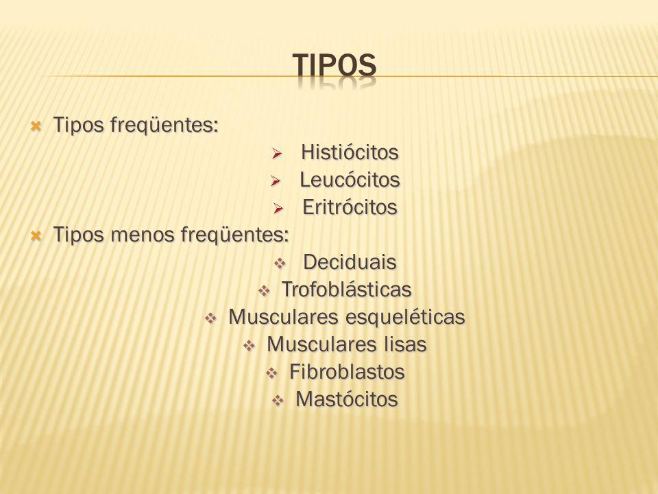 Musculares esqueléticas