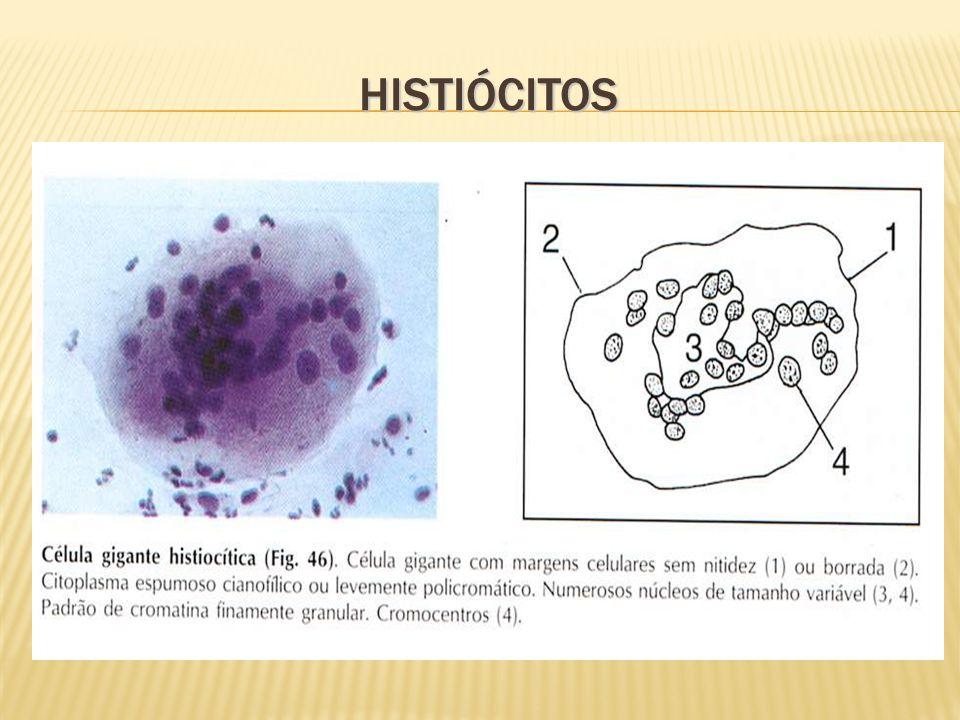 Histiócitos
