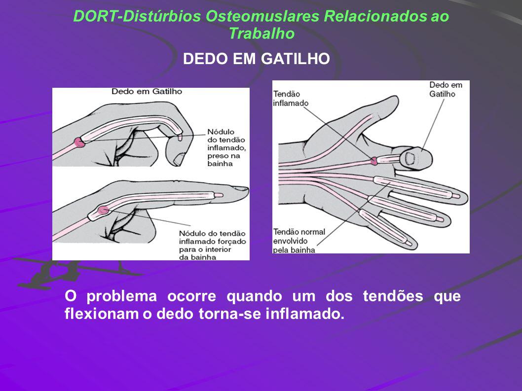 DORT-Distúrbios Osteomuslares Relacionados ao Trabalho