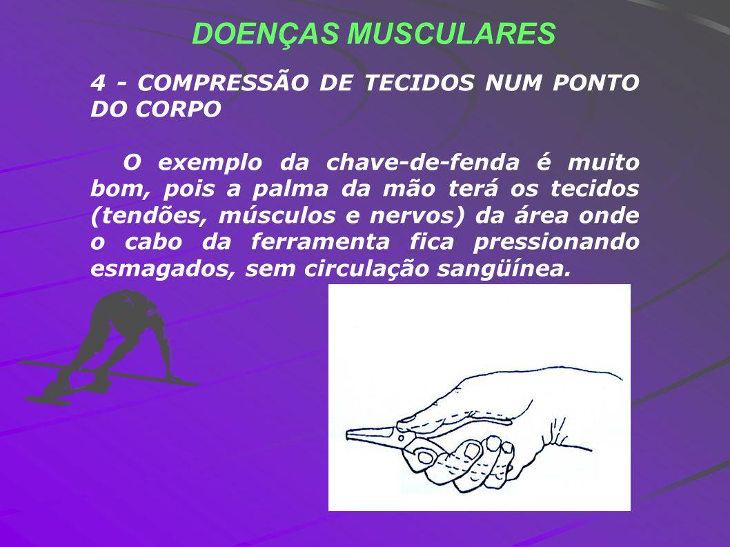 DOENÇAS MUSCULARES 4 - COMPRESSÃO DE TECIDOS NUM PONTO DO CORPO