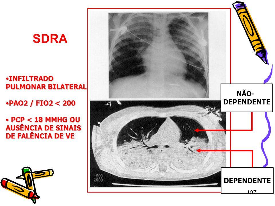 SDRA Dependente INFILTRADO PULMONAR BILATERAL PAO2 / FIO2 < 200