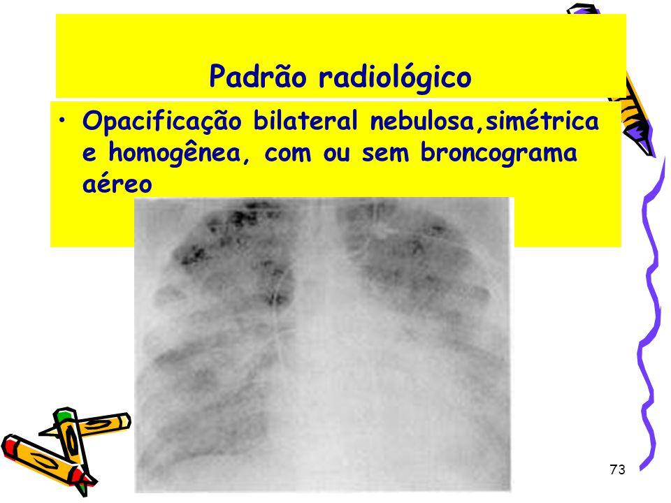 Padrão radiológico Opacificação bilateral nebulosa,simétrica e homogênea, com ou sem broncograma aéreo.