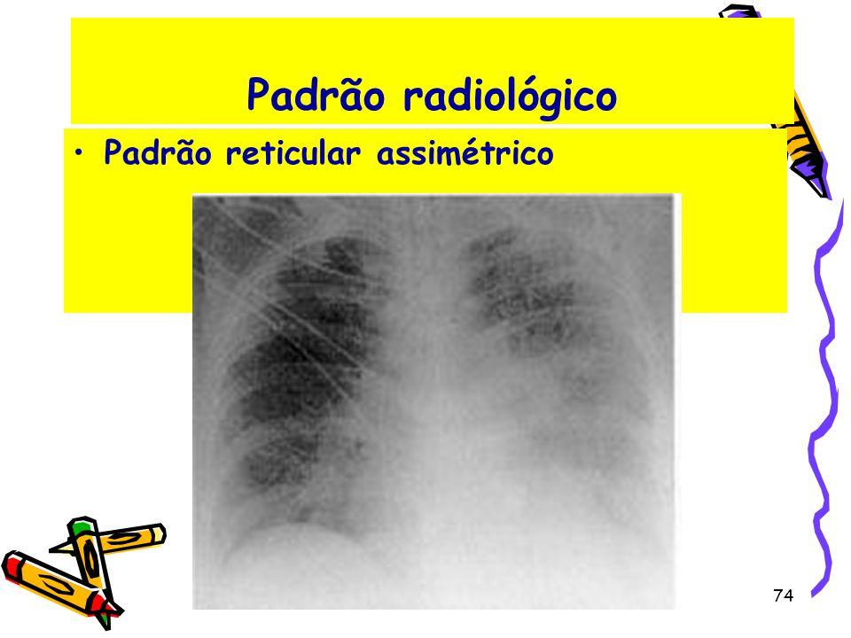 Padrão radiológico Padrão reticular assimétrico