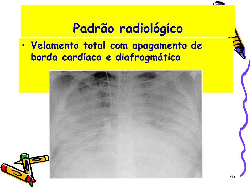 Padrão radiológico Velamento total com apagamento de borda cardíaca e diafragmática