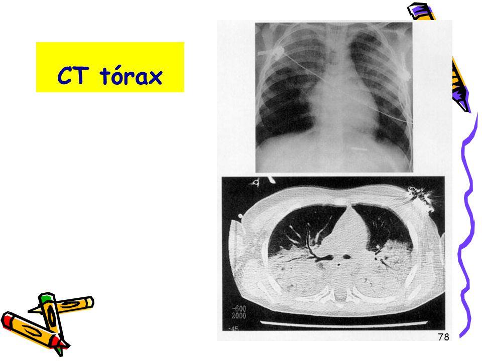CT tórax