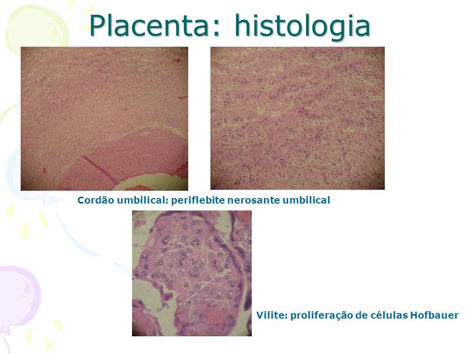 Placenta: histologia Cordão umbilical: periflebite nerosante umbilical