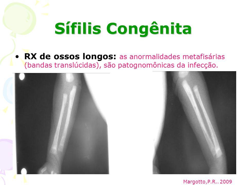 Sífilis Congênita RX de ossos longos: as anormalidades metafisárias (bandas translúcidas), são patognomônicas da infecção.