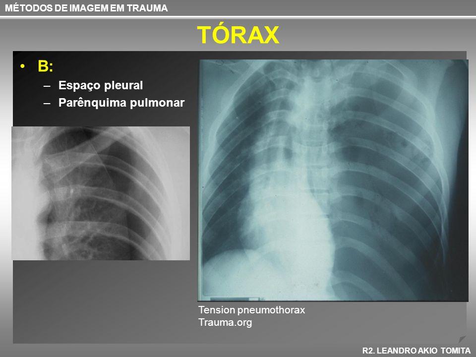 TÓRAX B: Espaço pleural Parênquima pulmonar Tension pneumothorax