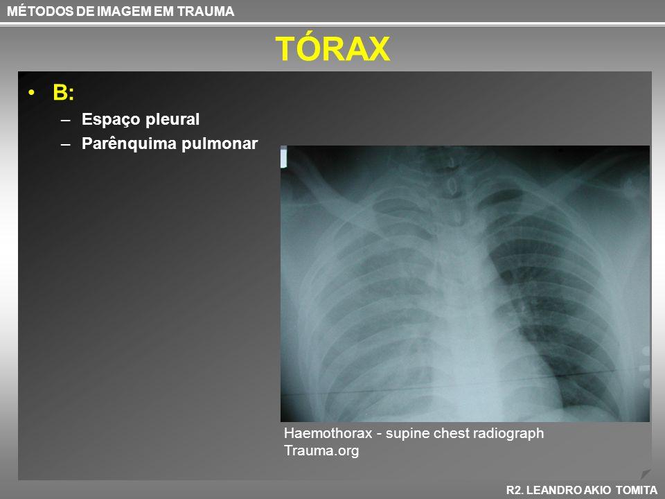 TÓRAX B: Espaço pleural Parênquima pulmonar