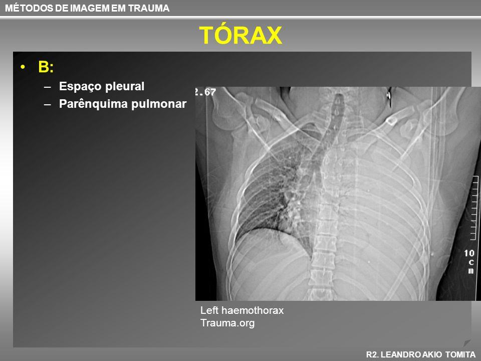 TÓRAX B: Espaço pleural Parênquima pulmonar Left haemothorax