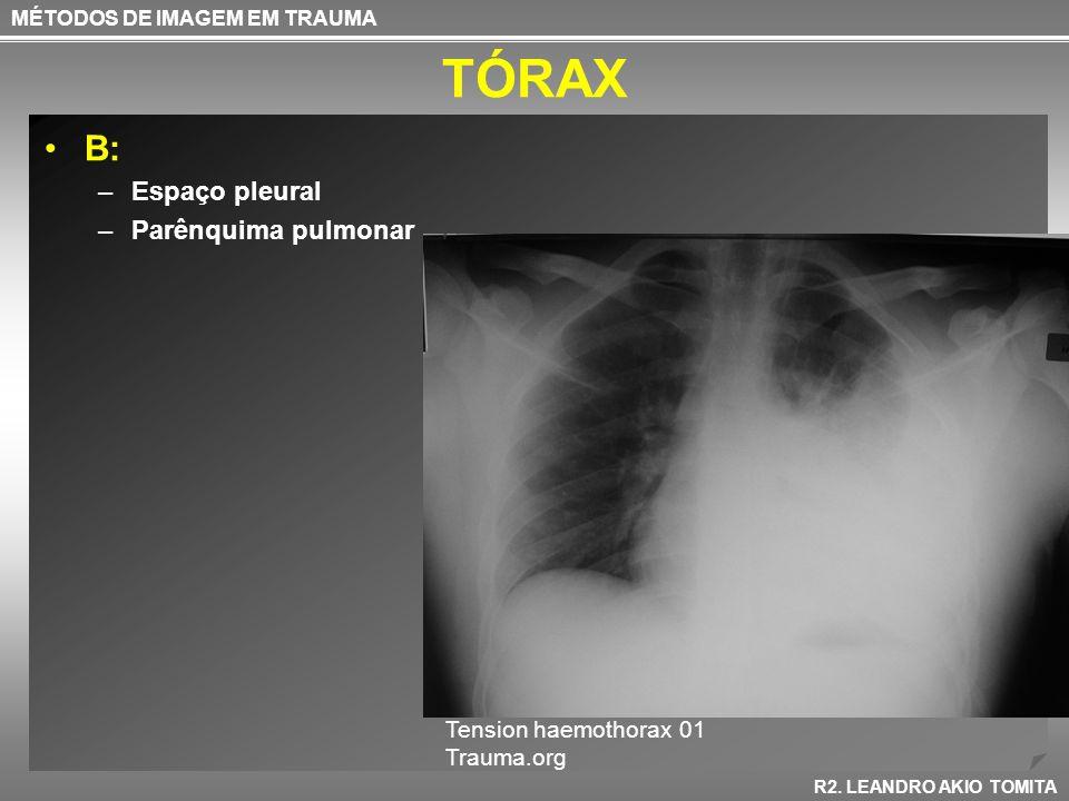 TÓRAX B: Espaço pleural Parênquima pulmonar Tension haemothorax 01