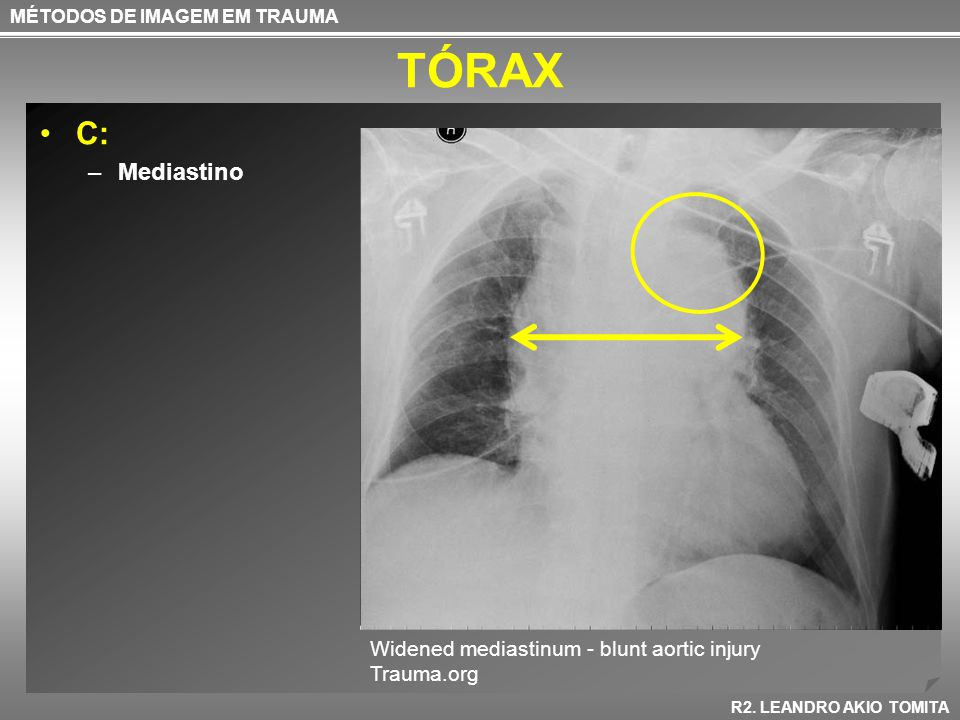 TÓRAX C: Mediastino Widened mediastinum - blunt aortic injury