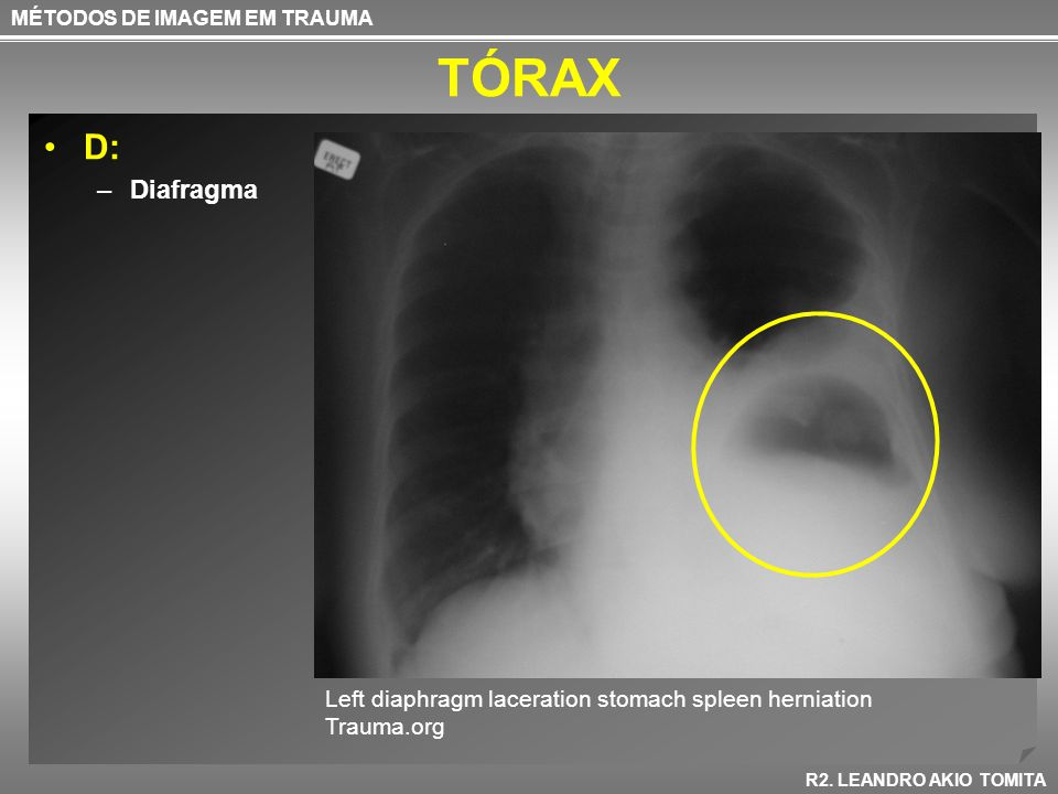 TÓRAX D: Diafragma Left diaphragm laceration stomach spleen herniation
