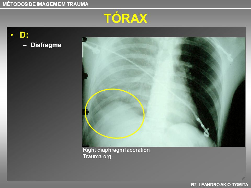 TÓRAX D: Diafragma Right diaphragm laceration Trauma.org