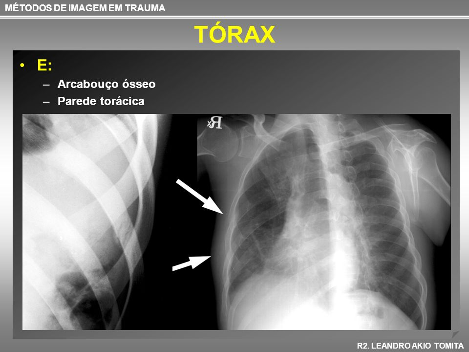 TÓRAX E: Arcabouço ósseo Parede torácica MÉTODOS DE IMAGEM EM TRAUMA