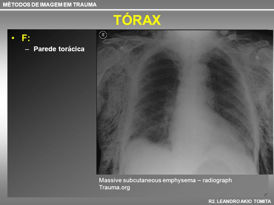 TÓRAX F: Parede torácica Massive subcutaneous emphysema – radiograph