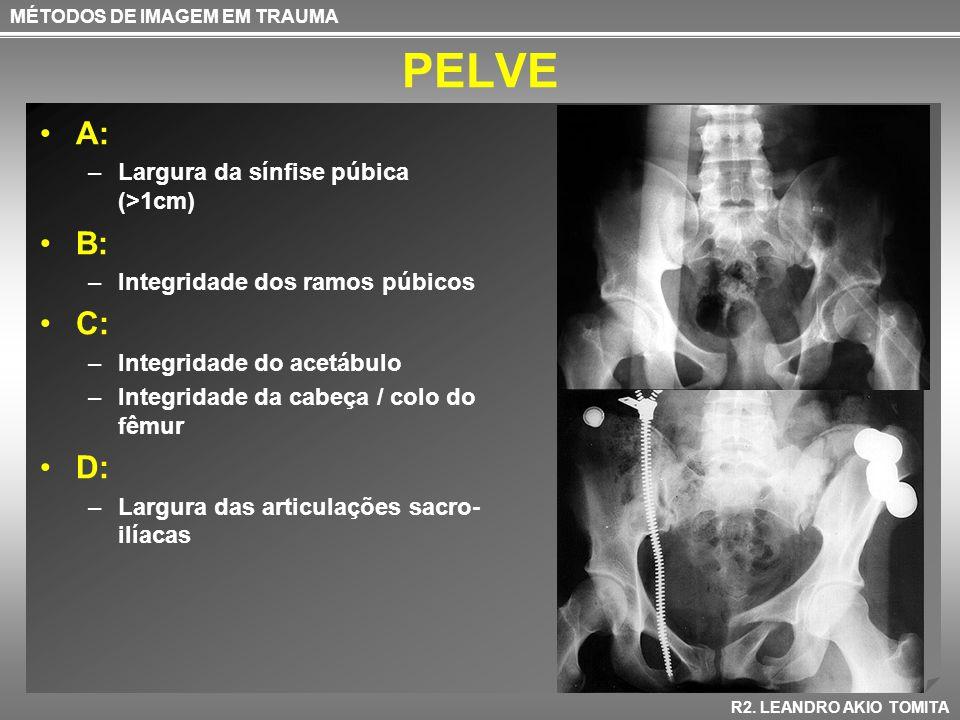 PELVE A: B: C: D: Largura da sínfise púbica (>1cm)