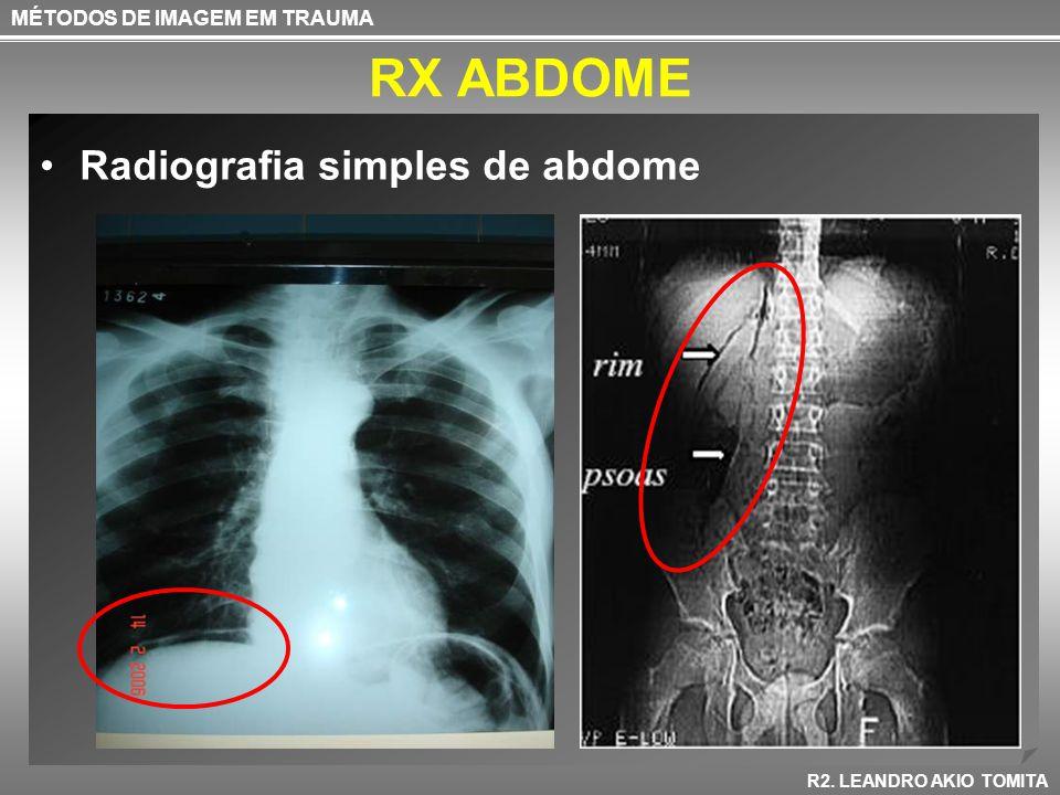 RX ABDOME Radiografia simples de abdome MÉTODOS DE IMAGEM EM TRAUMA