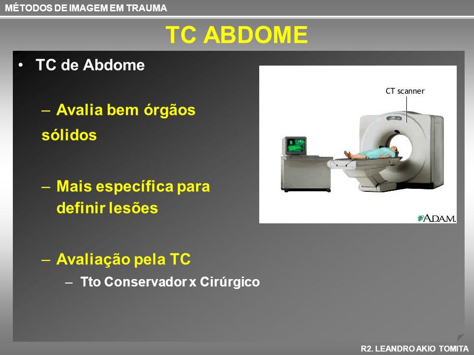 TC ABDOME TC de Abdome Avalia bem órgãos sólidos