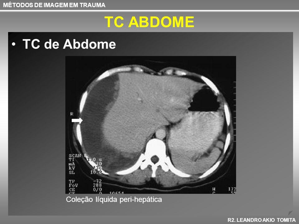 TC ABDOME TC de Abdome Coleção líquida peri-hepática