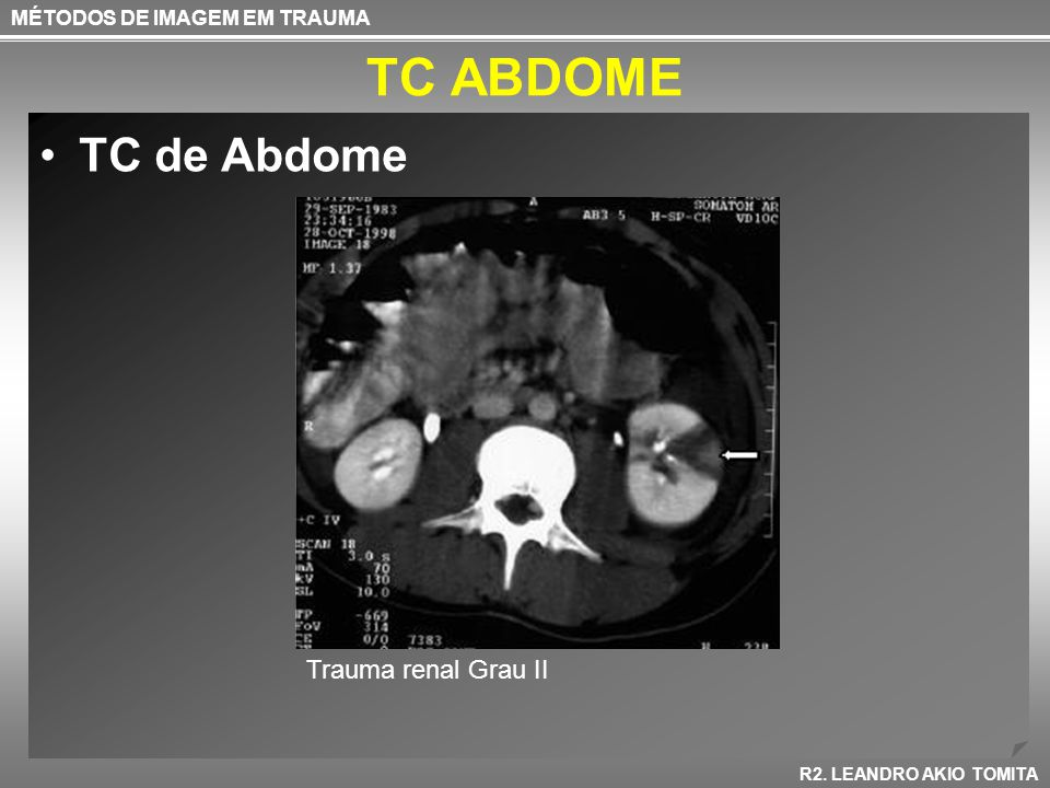 TC ABDOME TC de Abdome Trauma renal Grau II