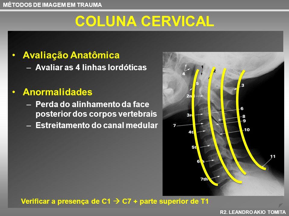 COLUNA CERVICAL Avaliação Anatômica Anormalidades