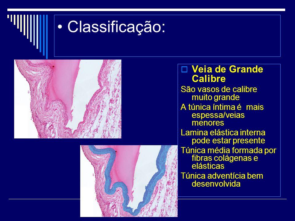 • Classificação: Veia de Grande Calibre