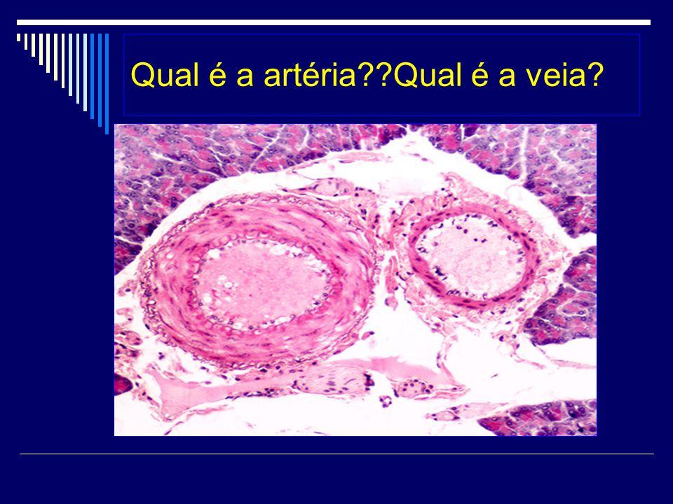 Qual é a artéria Qual é a veia