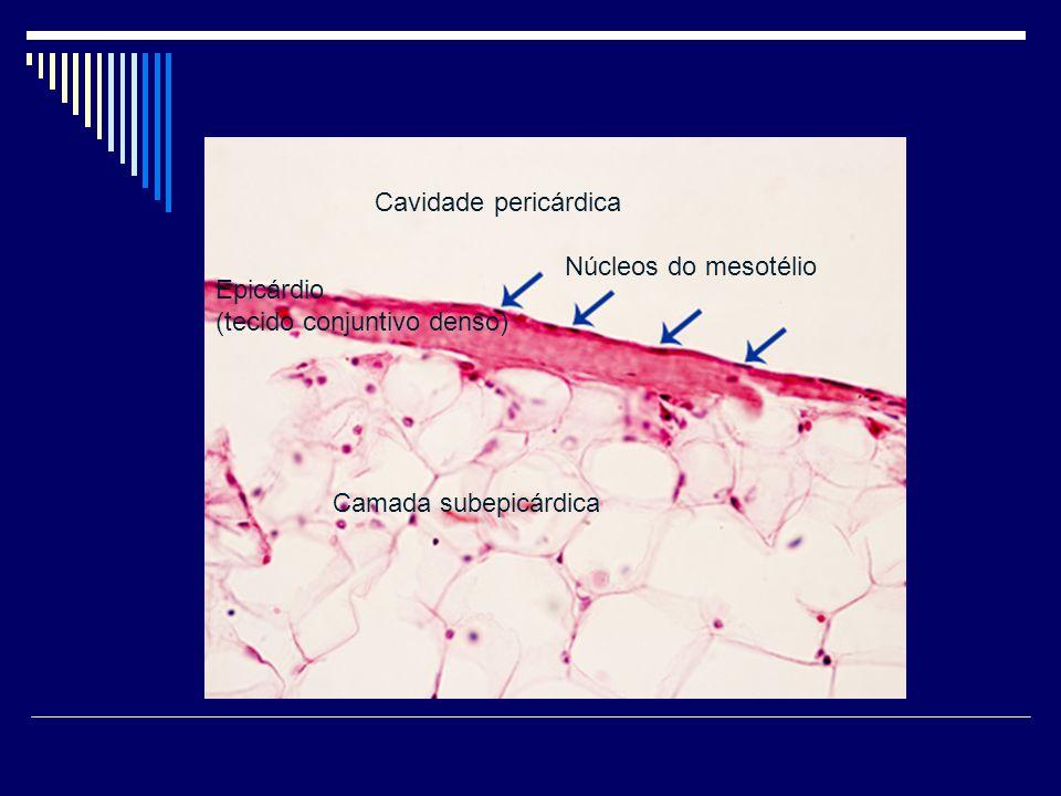 Cavidade pericárdica Núcleos do mesotélio Epicárdio (tecido conjuntivo denso) Camada subepicárdica
