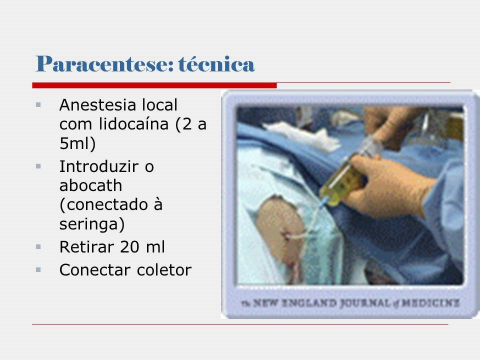 Paracentese: técnica Anestesia local com lidocaína (2 a 5ml)