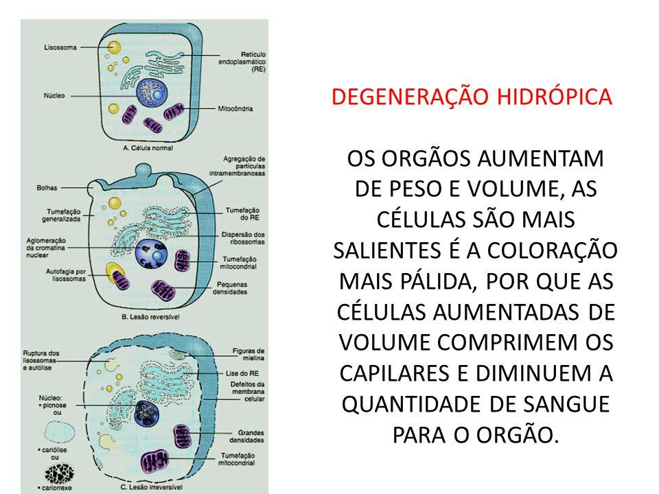 DEGENERAÇÃO HIDRÓPICA