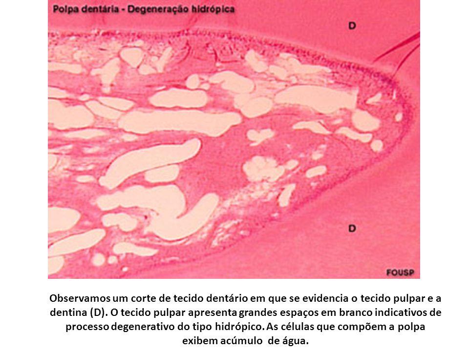 Observamos um corte de tecido dentário em que se evidencia o tecido pulpar e a dentina (D).