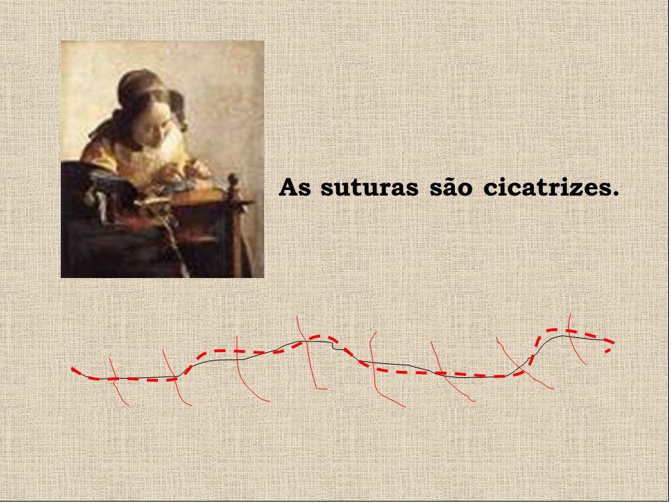 As suturas são cicatrizes.