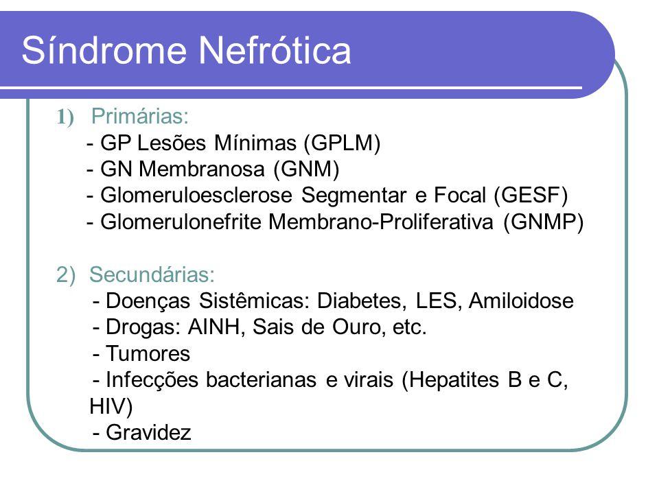 Síndrome Nefrótica 1) Primárias: - GP Lesões Mínimas (GPLM)