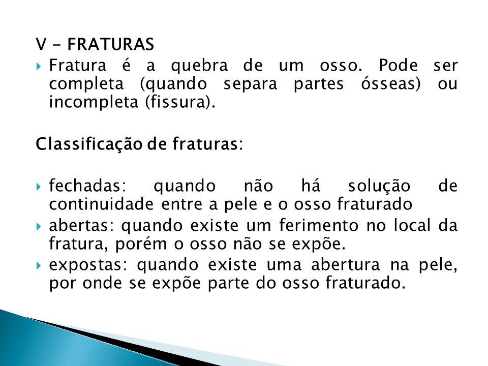 V - FRATURAS Fratura é a quebra de um osso. Pode ser completa (quando separa partes ósseas) ou incompleta (fissura).
