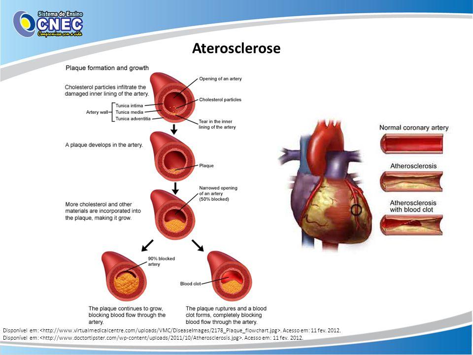 Aterosclerose Disponível em: <http://www.virtualmedicalcentre.com/uploads/VMC/DiseaseImages/2178_Plaque_flowchart.jpg>. Acesso em: 11 fev. 2012.