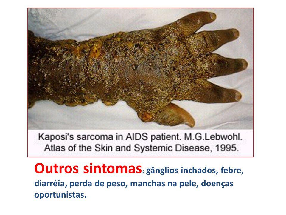 Outros sintomas: gânglios inchados, febre, diarréia, perda de peso, manchas na pele, doenças oportunistas.