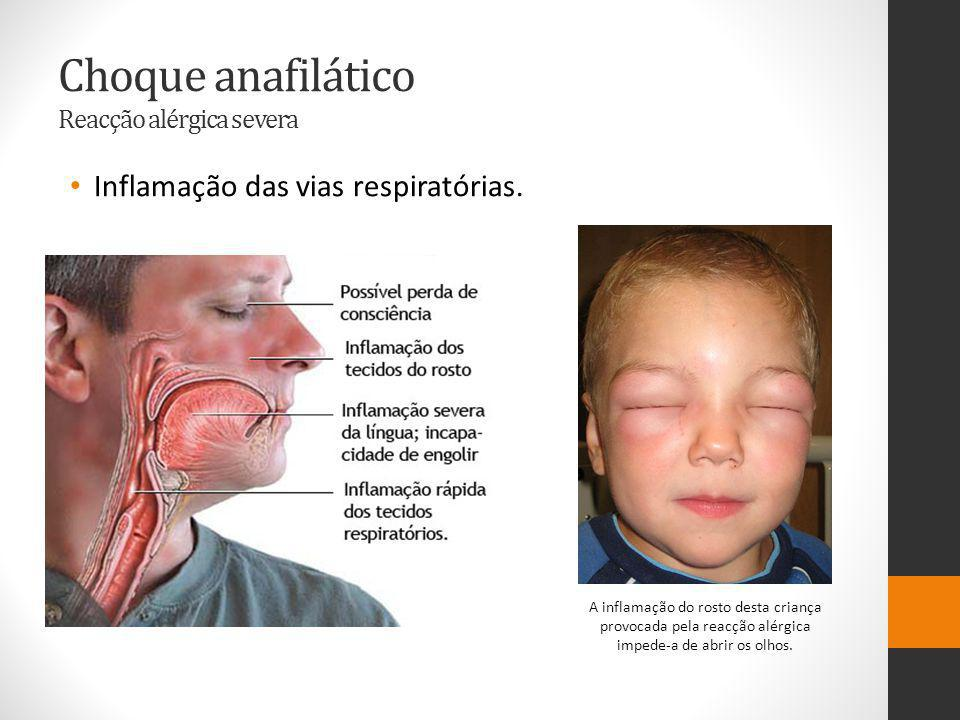 Choque anafilático Reacção alérgica severa