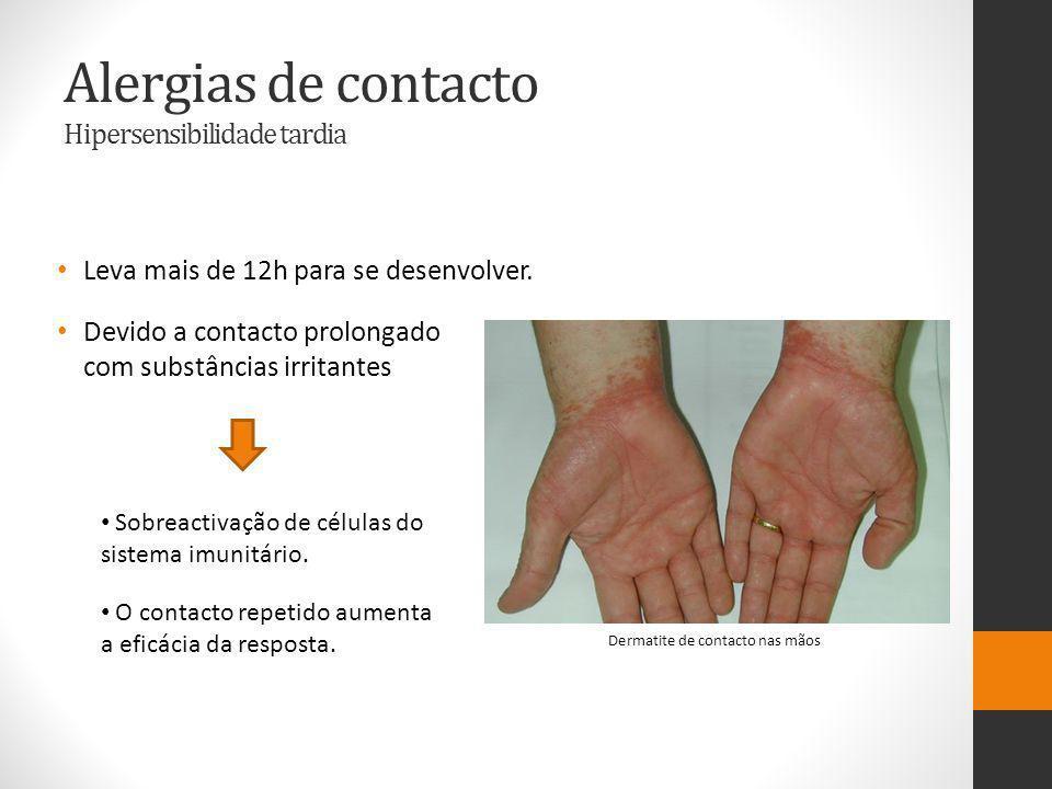 Alergias de contacto Hipersensibilidade tardia