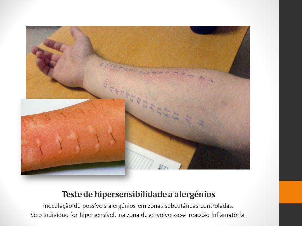 Teste de hipersensibilidade a alergénios