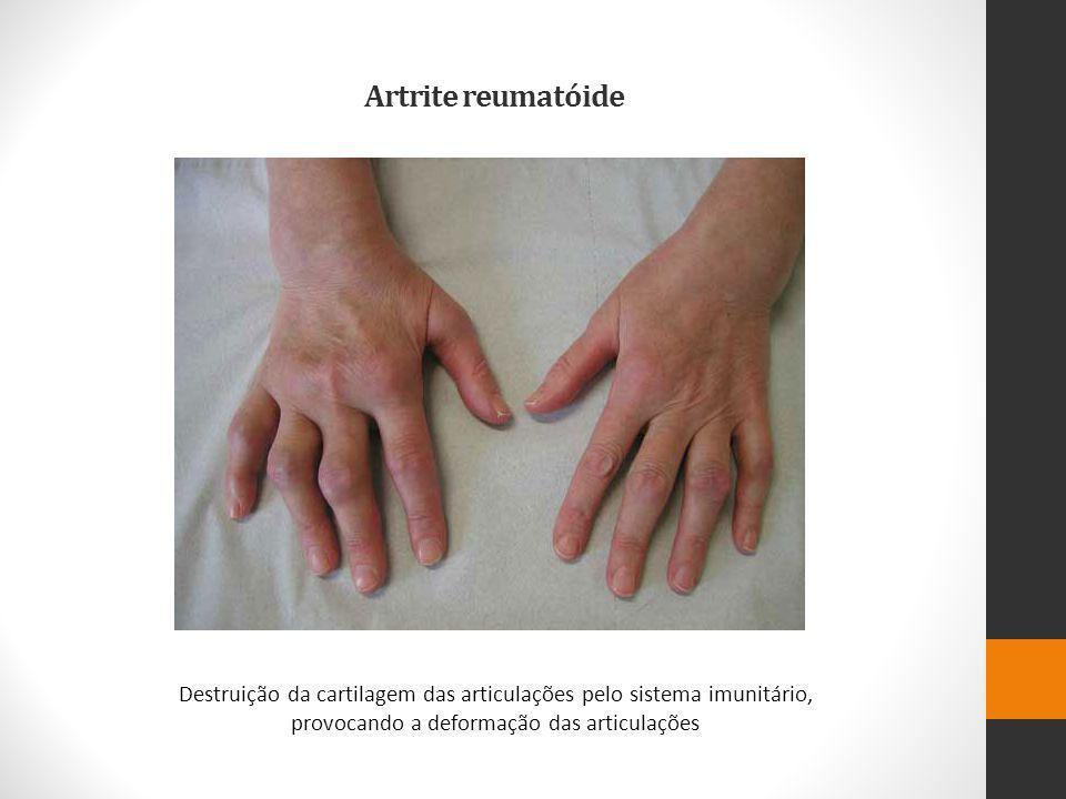 Artrite reumatóide Destruição da cartilagem das articulações pelo sistema imunitário, provocando a deformação das articulações.