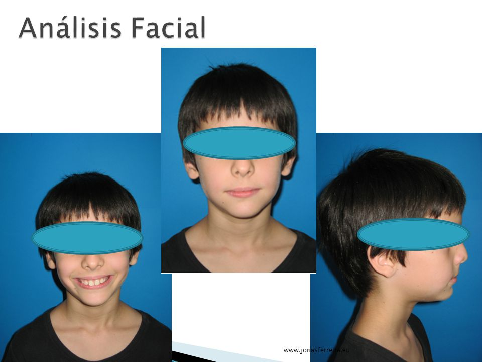 Análisis Facial www.jonasferreira.eu