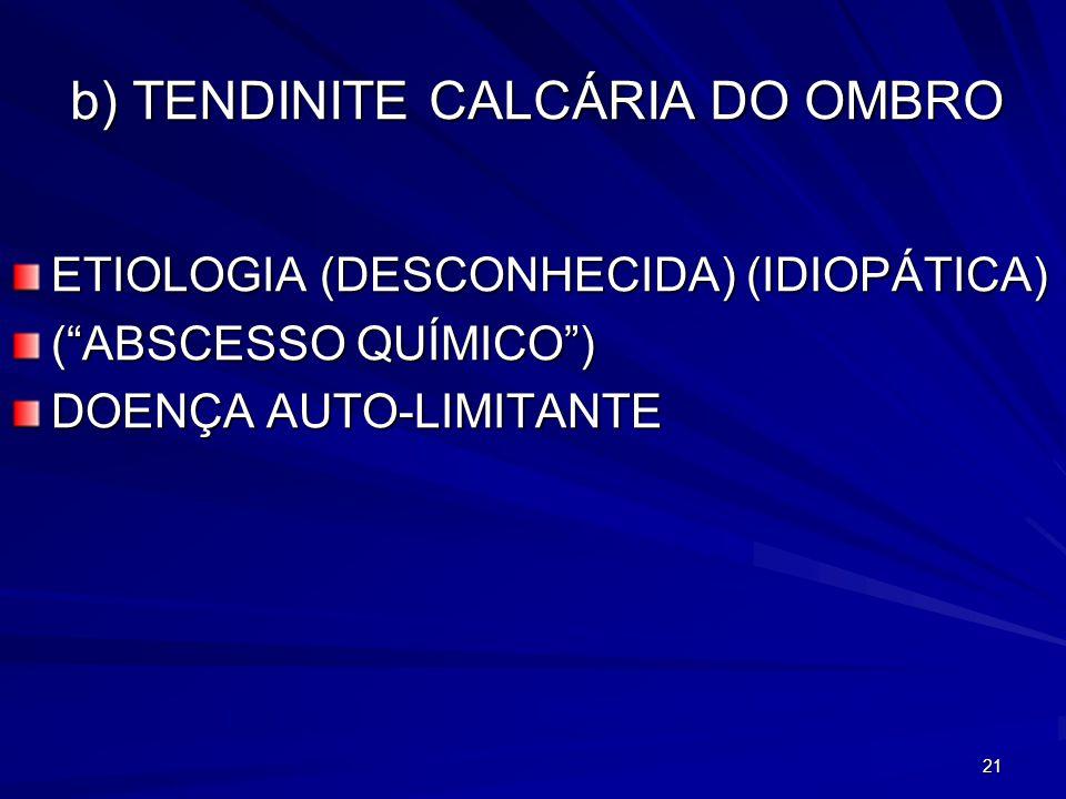 b) TENDINITE CALCÁRIA DO OMBRO