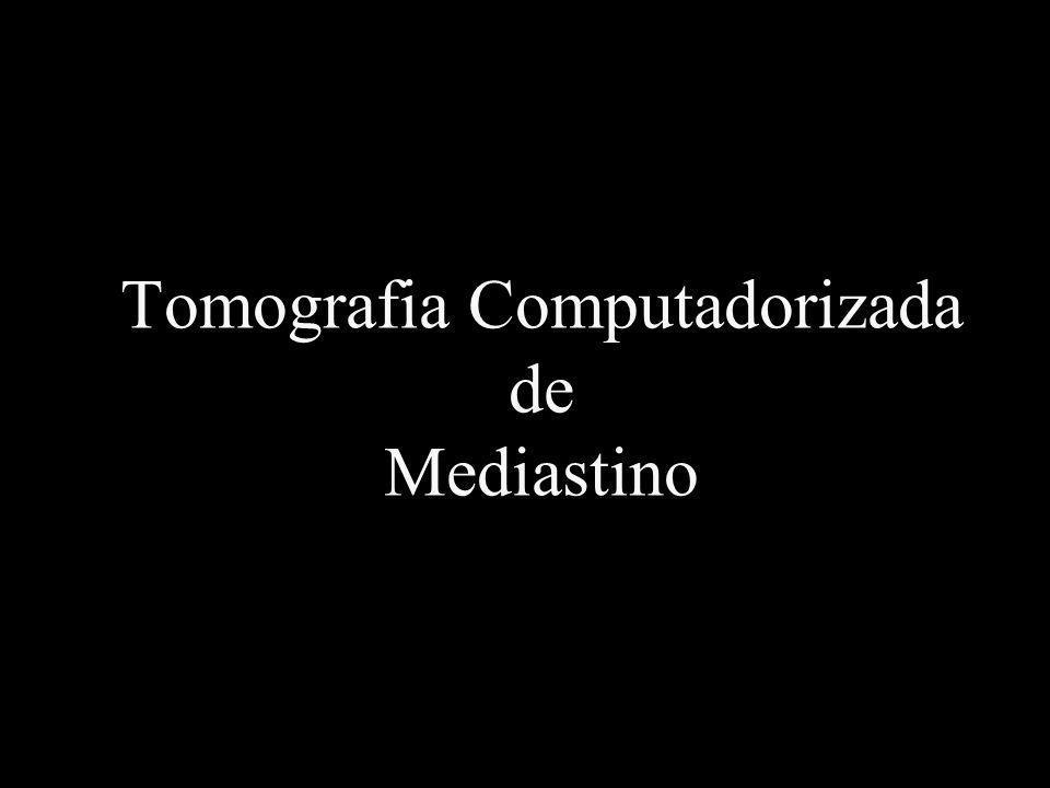 Tomografia Computadorizada de Mediastino