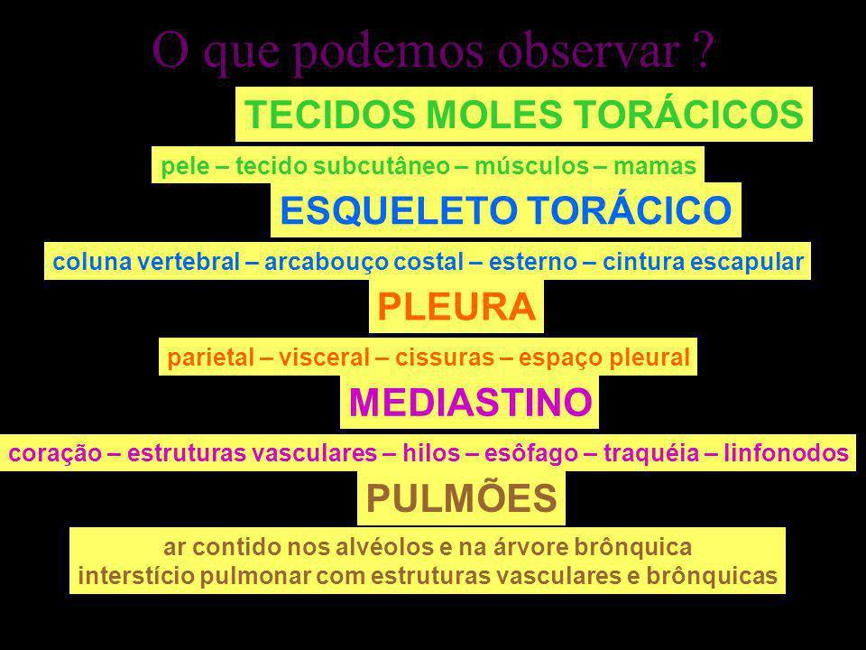 O que podemos observar TECIDOS MOLES TORÁCICOS ESQUELETO TORÁCICO